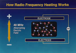 radio-frequency-7.jpg
